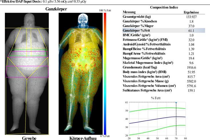 Knochendichtemessung bei Einnahme von Cortison