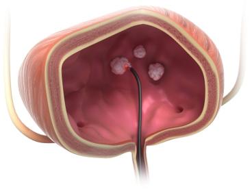 biolitec®: Blasentumore jetzt mit Trans-Urethraler Laserablation TULA® ambulant behandeln