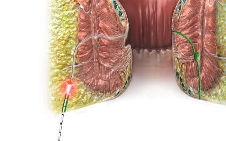 Lasertherapie FiLaC® der biolitec® als einer der letzten Auswege für schließmuskelschonende Methoden bei komplexen perianalen Fisteln