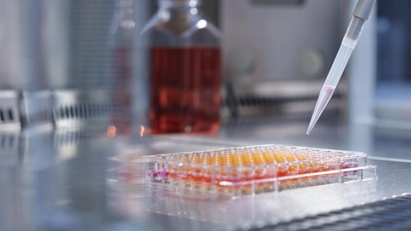 Neuer Investor für die Immunservice GmbH