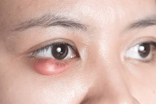 Stye – Know the Causes, Treatment & Home Remedies
