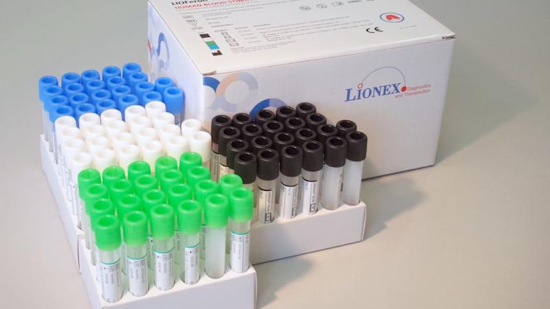 IGRA TB LIOFeron®, unique test,  excludes TB by M. bovis
