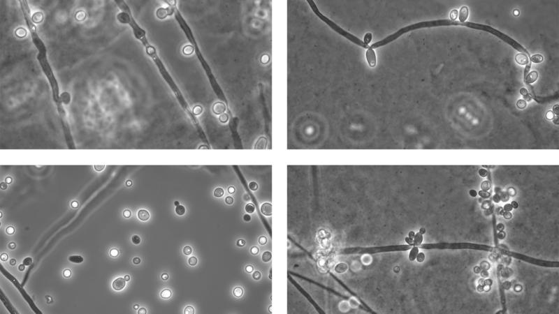 Wenn Candida nicht Candida ist – die Herausforderung der Benennung von Pilzen